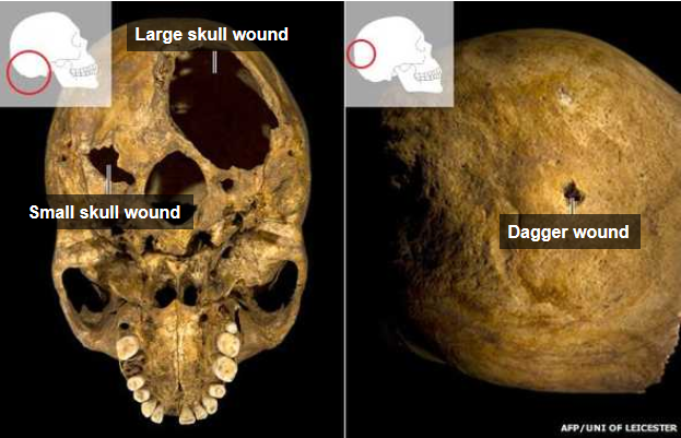 Richard III death wounds
